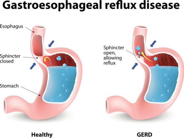 GERD - Trào ngược dạ dày